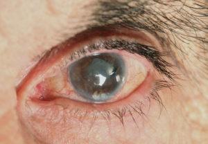eye-care-Cataracts