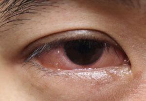 eye-care-Pink-Eyes