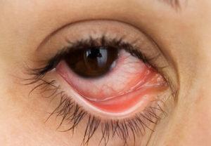 eye-care-lens-condition