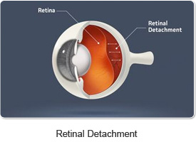 retinal_detachment